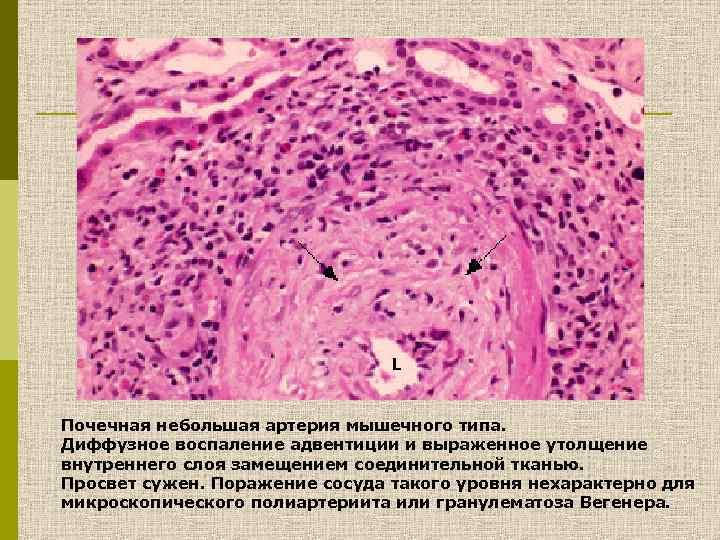 Почечная небольшая артерия мышечного типа. Диффузное воспаление адвентиции и выраженное утолщение внутреннего слоя замещением