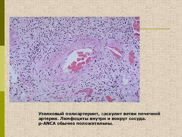 Узелковый полиартериит, васкулит ветви почечной артерии. Лимфоциты внутри и вокруг сосуда. р-ANCA обычно положительны.
