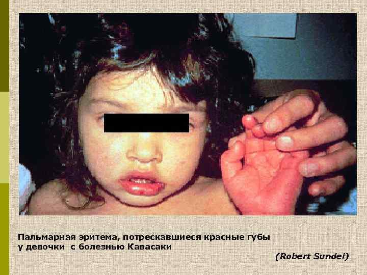 Пальмарная эритема, потрескавшиеся красные губы у девочки с болезнью Кавасаки (Robert Sundel)