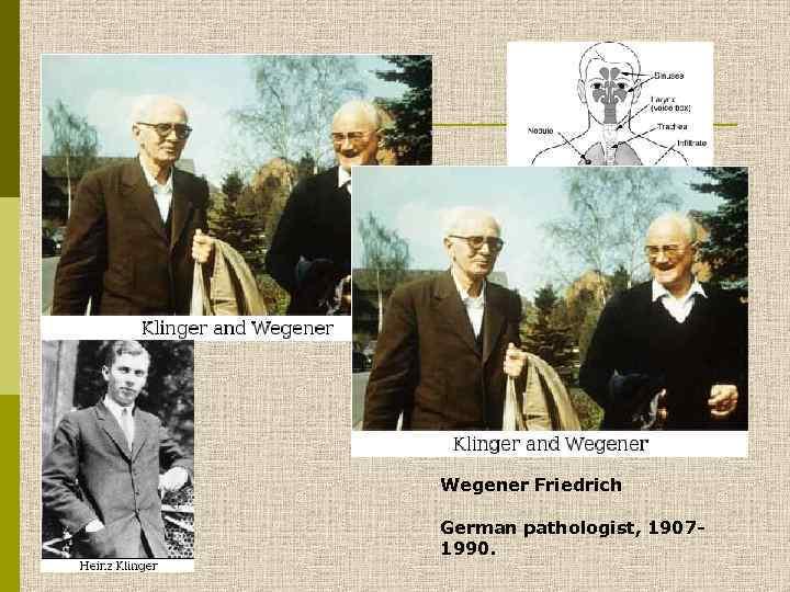 Wegener Friedrich German pathologist, 19071990.