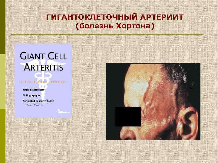 ГИГАНТОКЛЕТОЧНЫЙ АРТЕРИИТ (болезнь Хортона)