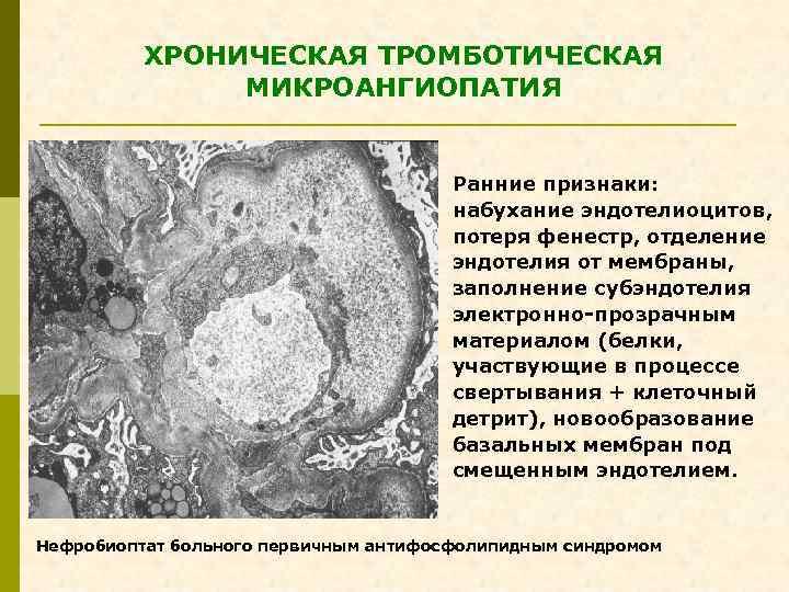 ХРОНИЧЕСКАЯ ТРОМБОТИЧЕСКАЯ МИКРОАНГИОПАТИЯ Ранние признаки: набухание эндотелиоцитов, потеря фенестр, отделение эндотелия от мембраны, заполнение
