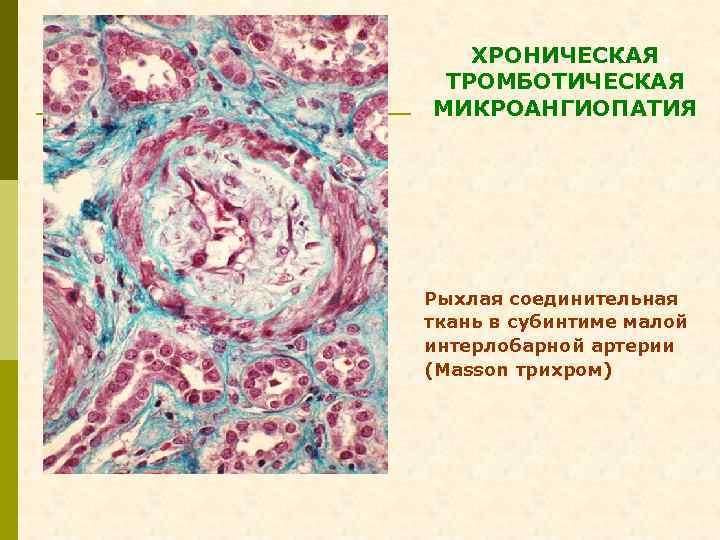 ХРОНИЧЕСКАЯ ТРОМБОТИЧЕСКАЯ МИКРОАНГИОПАТИЯ Рыхлая соединительная ткань в субинтиме малой интерлобарной артерии (Masson трихром)