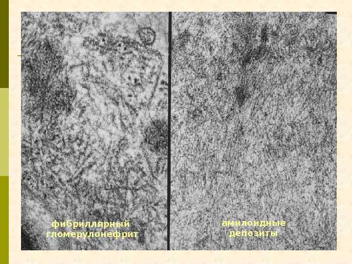фибриллярный гломерулонефрит амилоидные депозиты