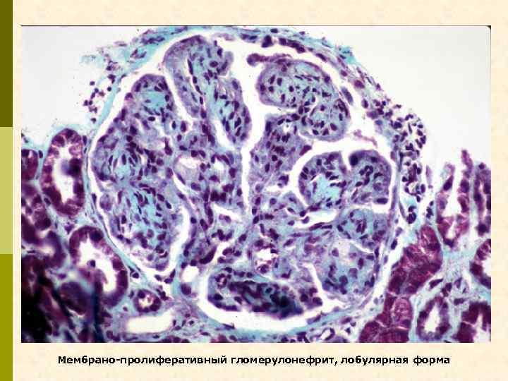 Мембрано-пролиферативный гломерулонефрит, лобулярная форма