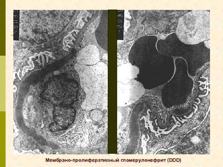 Мембрано-пролиферативный гломерулонефрит (DDD)