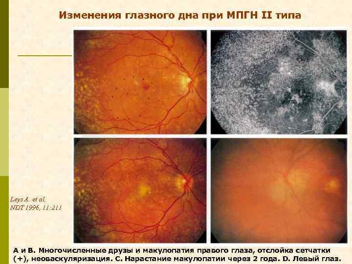 Изменения глазного дна при МПГН II типа Leys A. et al. NDT 1996, 11: