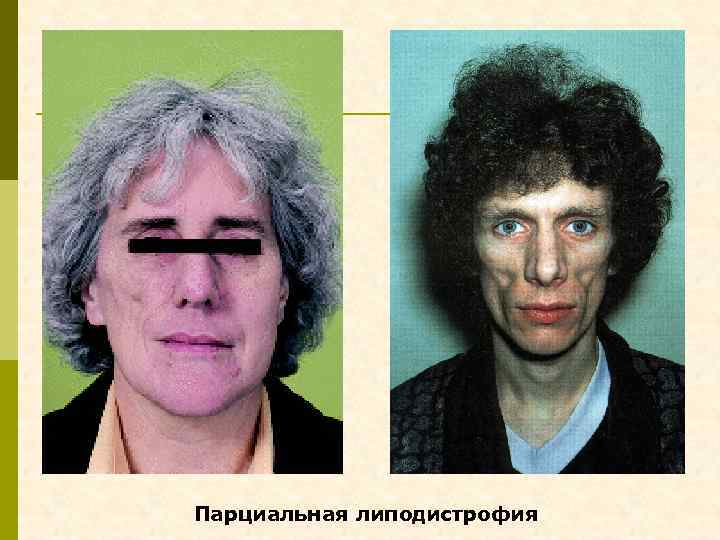 Парциальная липодистрофия