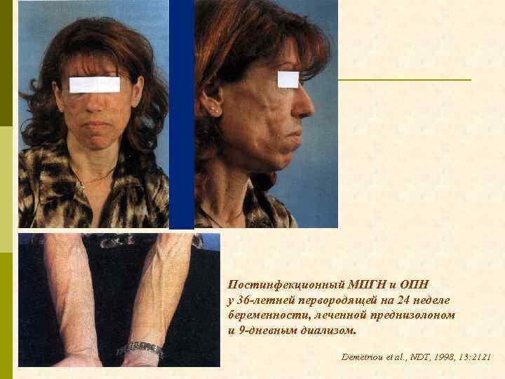 Постинфекционный МПГН и ОПН у 36 -летней первородящей на 24 неделе беременности, леченной преднизолоном