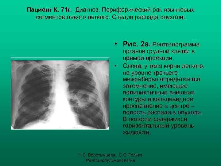 Опухоль в стадии распада что это 157
