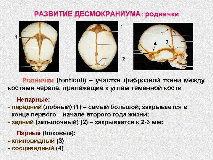 РАЗВИТИЕ ДЕСМОКРАНИУМА: роднички 1 1 1 4 3 2 Роднички (fonticuli) – участки фиброзной
