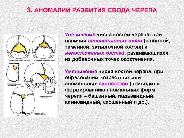 3. АНОМАЛИИ РАЗВИТИЯ СВОДА ЧЕРЕПА Увеличение числа костей черепа: при наличии непостоянных швов (в
