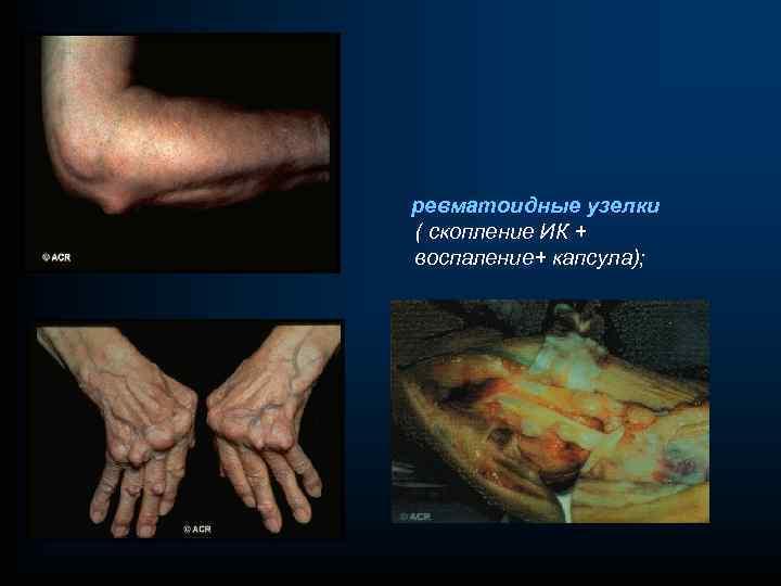 ревматоидные узелки ( скопление ИК + воспаление+ капсула);