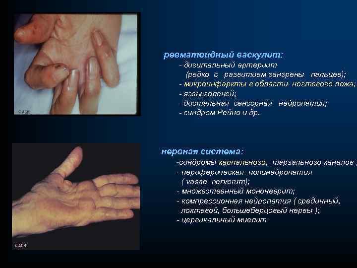 ревматоидный васкулит: - дигитальный артериит (редко с развитием гангрены пальцев); - микроинфаркты в области