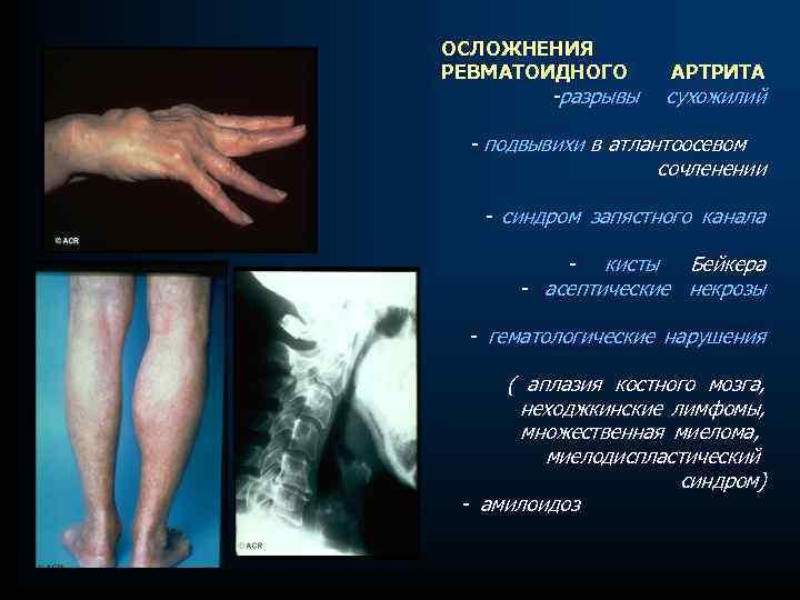 ОСЛОЖНЕНИЯ РЕВМАТОИДНОГО -разрывы АРТРИТА сухожилий - подвывихи в атлантоосевом сочленении - синдром запястного канала