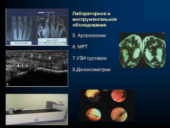 Лабораторное и инструментальное обследование 5. Артроскопия 6. МРТ 7. УЗИ суставов 8. Денситометрия