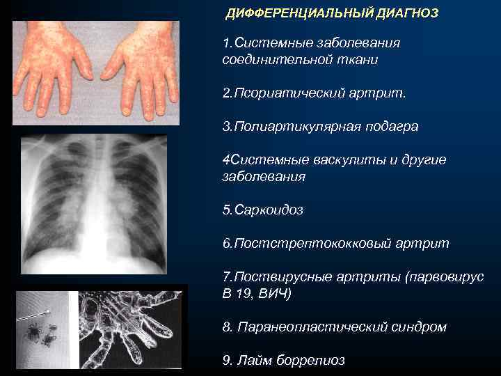 ДИФФЕРЕНЦИАЛЬНЫЙ ДИАГНОЗ 1. Системные заболевания соединительной ткани 2. Псориатический артрит. 3. Полиартикулярная подагра 4