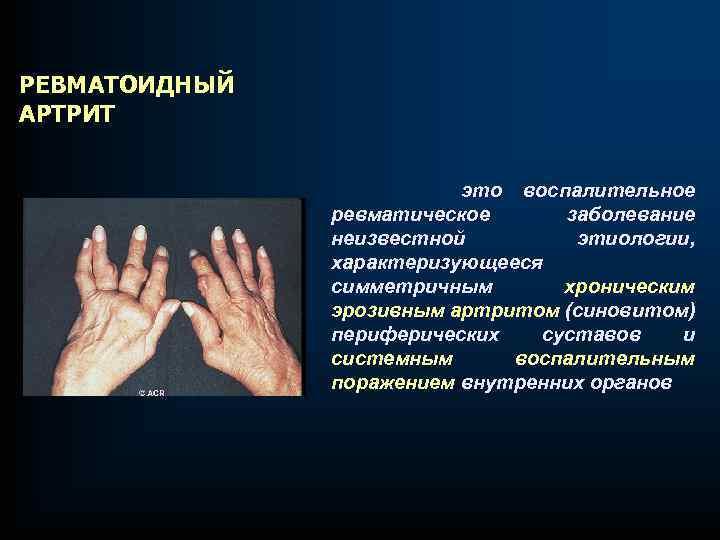 РЕВМАТОИДНЫЙ АРТРИТ это воспалительное ревматическое заболевание неизвестной этиологии, характеризующееся симметричным хроническим эрозивным артритом (синовитом)