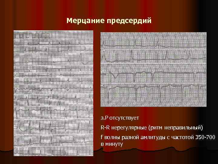 Мерцание предсердий з. P отсутствует R-R нерегулярные (ритм неправильный) f волны разной амлитуды с