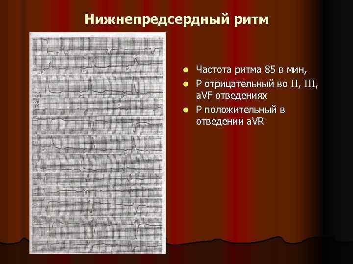 Нижнепредсердный ритм Частота ритма 85 в мин, l Р отрицательный во II, III, a.