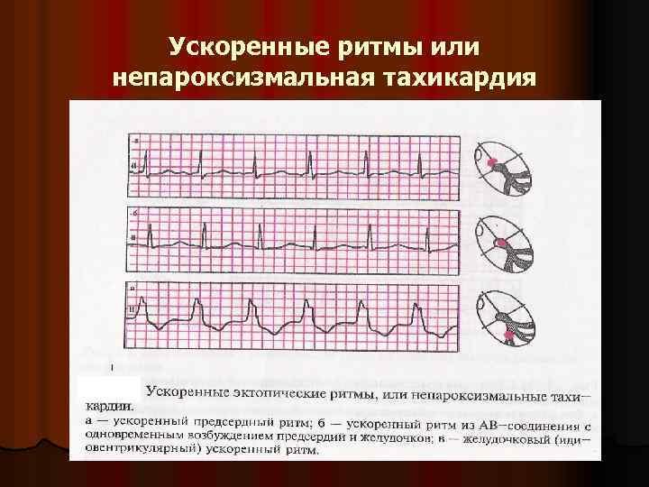 Ускоренные ритмы или непароксизмальная тахикардия