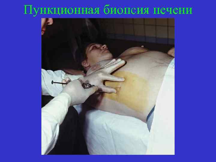 Пункционная биопсия печени