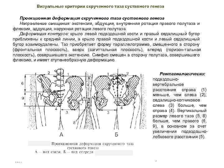 Визуальные критерии скрученного таза суставного генеза Проекционная деформация скрученного таза суставного генеза Направление смещения: