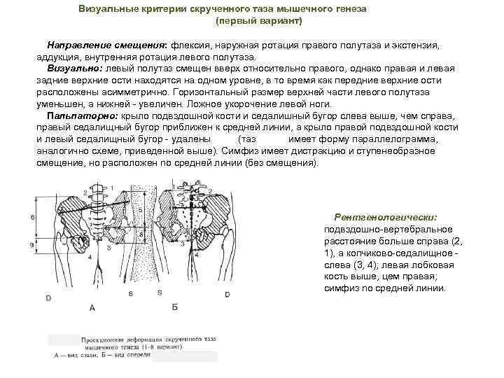 Визуальные критерии скрученного таза мышечного генеза (первый вариант) Направление смещения: флексия, наружная ротация правого