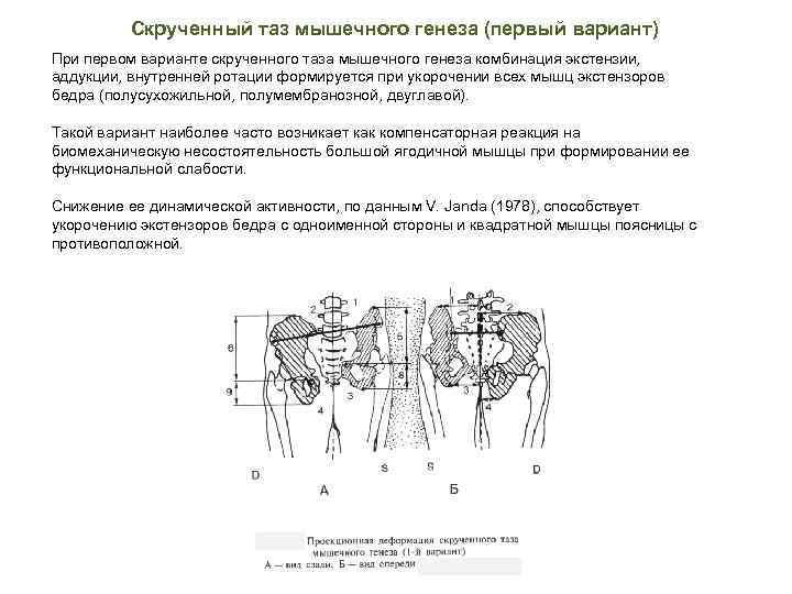 Скрученный таз мышечного генеза (первый вариант) При первом варианте скрученного таза мышечного генеза комбинация