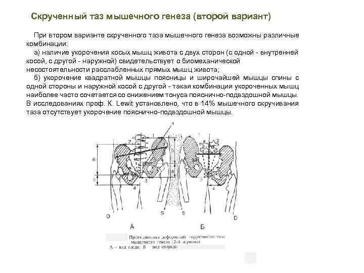 Скрученный таз мышечного генеза (второй вариант) При втором варианте скрученного таза мышечного генеза возможны