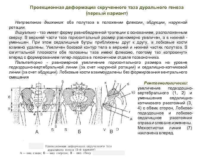 Проекционная деформация скрученного таза дурального генеза (первый вариант) Направление движения: оба полутаза в положении