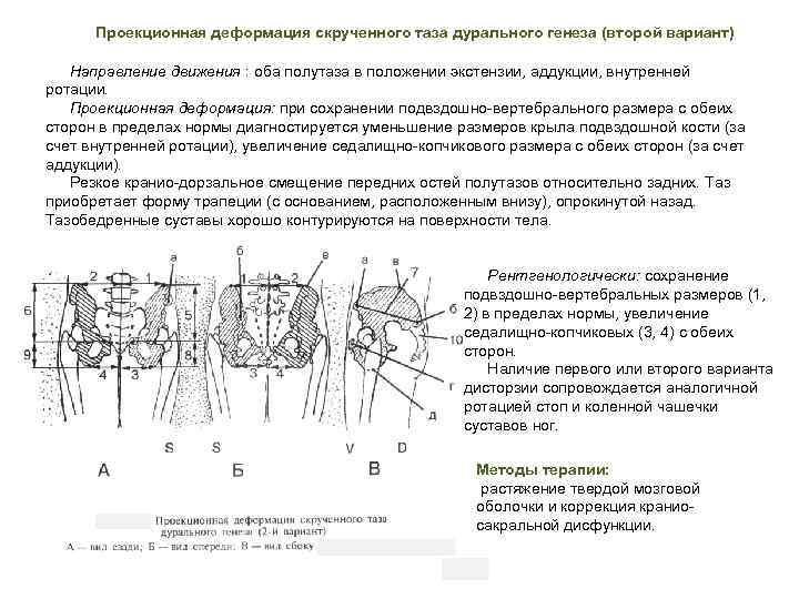 Проекционная деформация скрученного таза дурального генеза (второй вариант) Направление движения : оба полутаза в