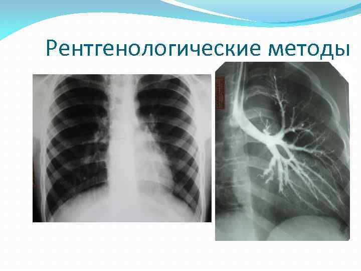 Рентгенологические методы