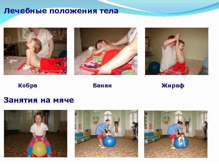 Лечебные положения тела Кобра Занятия на мяче Банан Жираф