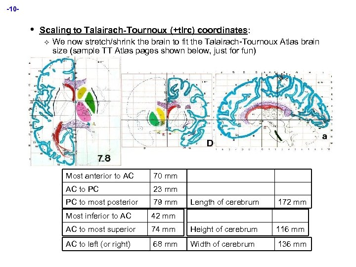 -10 - • Scaling to Talairach-Tournoux (+tlrc) coordinates: ² We now stretch/shrink the brain