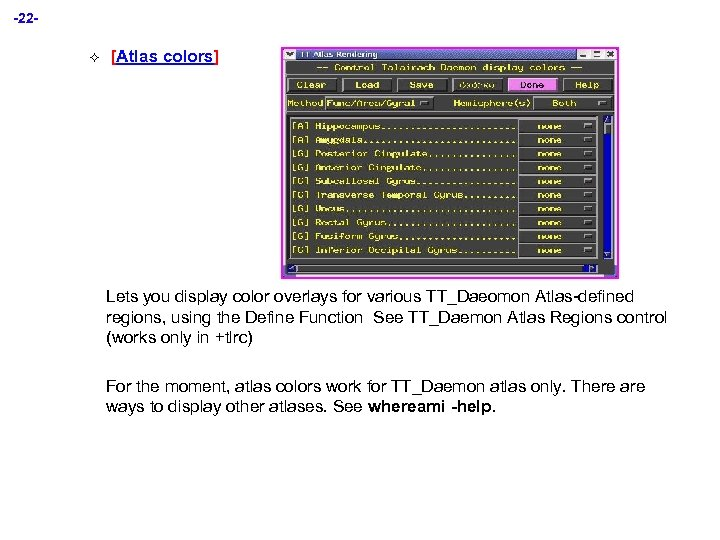 -22² [Atlas colors] Lets you display color overlays for various TT_Daeomon Atlas-defined regions, using