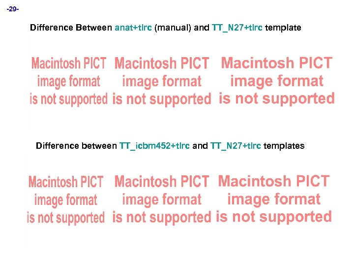 -29 - Difference Between anat+tlrc (manual) and TT_N 27+tlrc template Difference between TT_icbm 452+tlrc