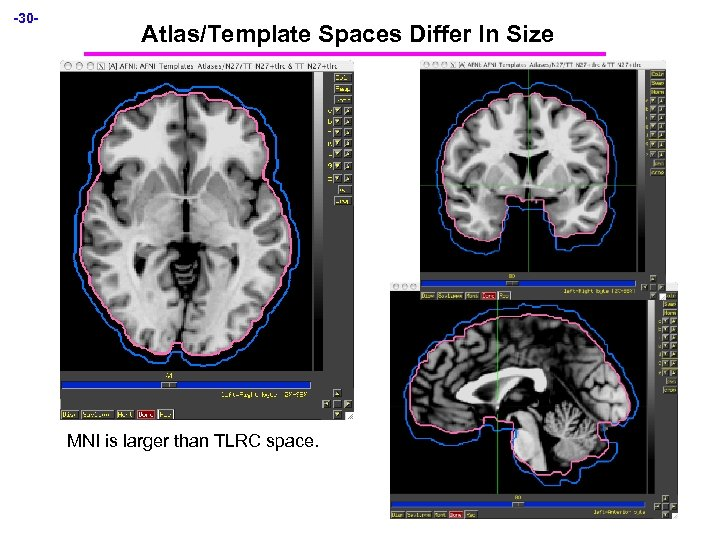 -30 - Atlas/Template Spaces Differ In Size MNI is larger than TLRC space.