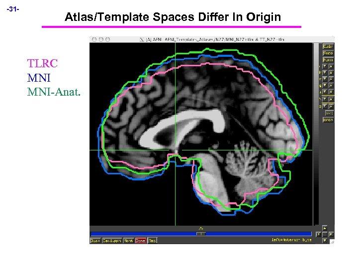 -31 - Atlas/Template Spaces Differ In Origin TLRC MNI-Anat.