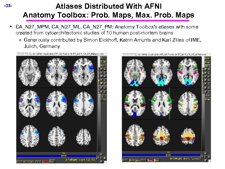 -35 - • Atlases Distributed With AFNI Anatomy Toolbox: Prob. Maps, Max. Prob. Maps
