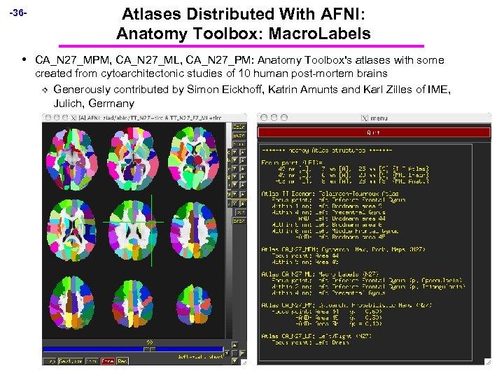 -36 - • Atlases Distributed With AFNI: Anatomy Toolbox: Macro. Labels CA_N 27_MPM, CA_N