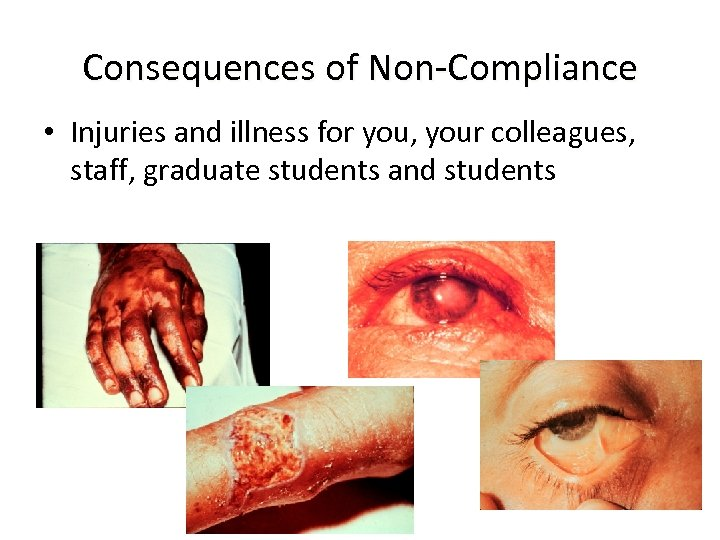 Consequences of Non-Compliance • Injuries and illness for you, your colleagues, staff, graduate students