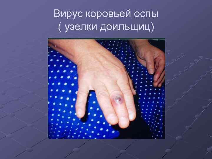 Вирус коровьей оспы ( узелки доильщиц)