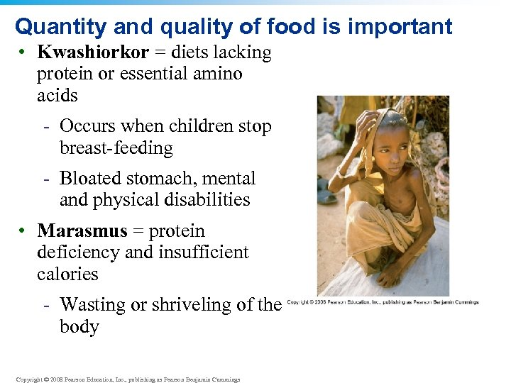Quantity and quality of food is important • Kwashiorkor = diets lacking protein or
