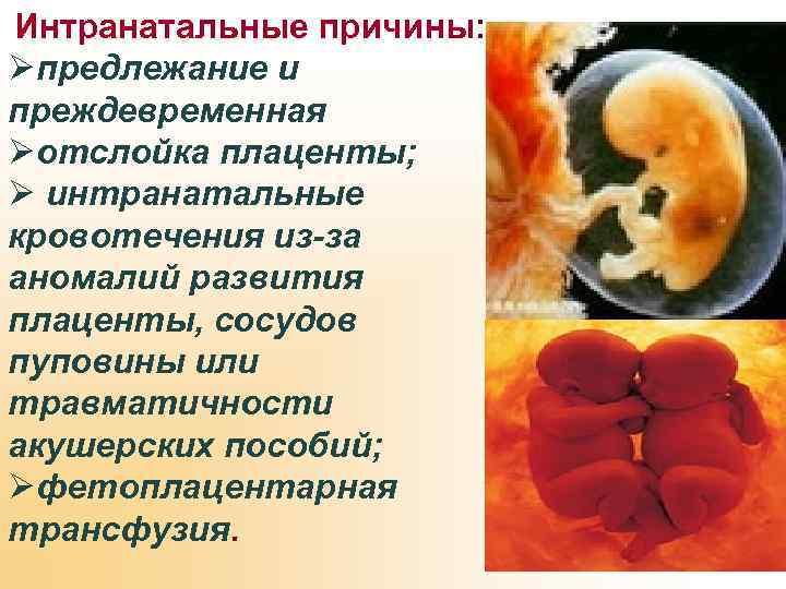 Интранатальные причины: Øпредлежание и преждевременная Øотслойка плаценты; Ø интранатальные кровотечения из-за аномалий развития плаценты,
