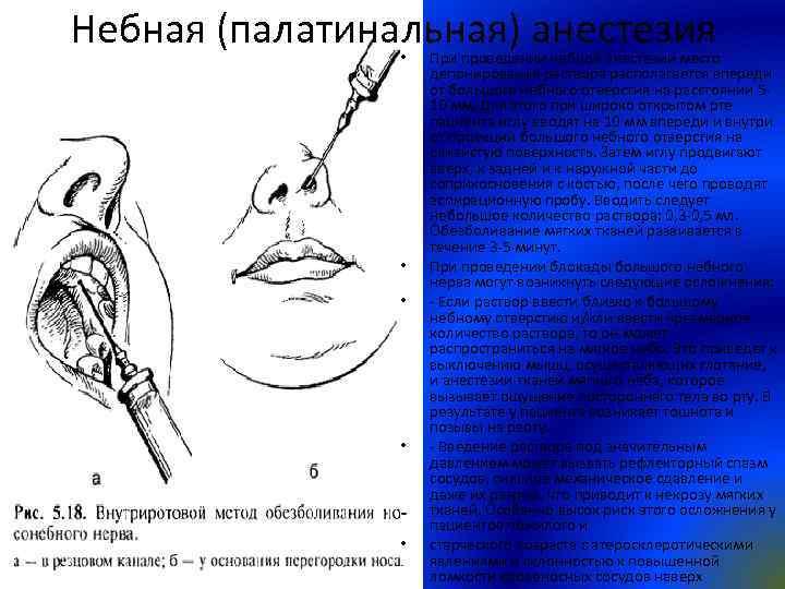 Небная (палатинальная) анестезия • • • При проведении небной анестезии место депонирования раствора располагается