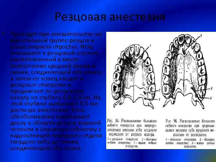 Резцовая анестезия • Проводят при вмешательстве на фронтальной группе резцов и альвеолярном отростке. Иглу
