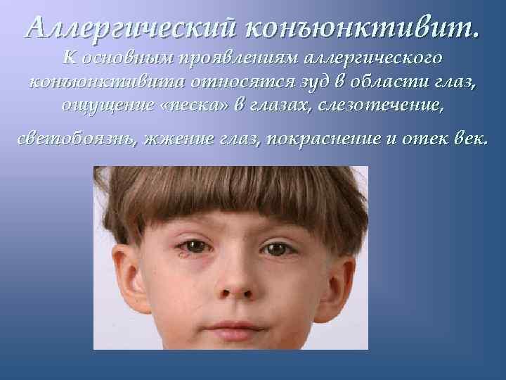 Аллергический конъюнктивит. К основным проявлениям аллергического конъюнктивита относятся зуд в области глаз, ощущение «песка»