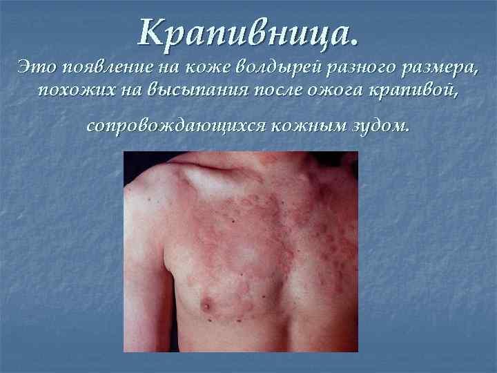 Крапивница. Это появление на коже волдырей разного размера, похожих на высыпания после ожога крапивой,