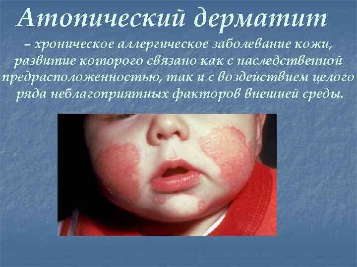 Атопический дерматит – хроническое аллергическое заболевание кожи, развитие которого связано как с наследственной предрасположенностью,
